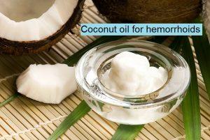 Coconut Oil for Hemorrhoids
