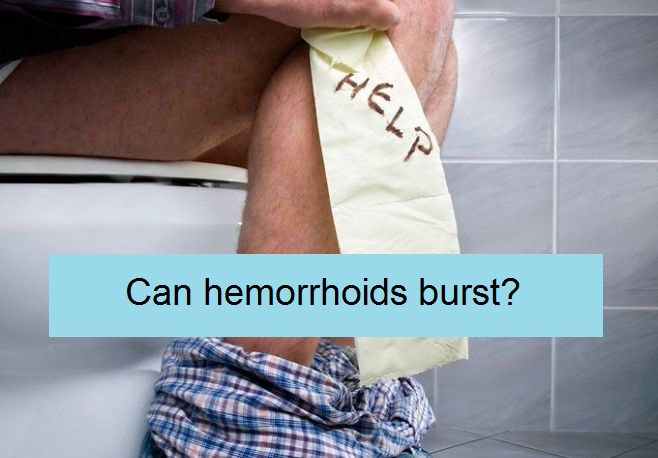 can hemorrhoids burst