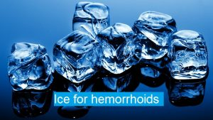 ices for hemorrhoids